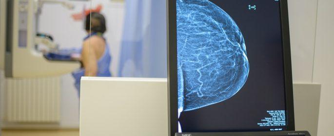 mamografii_spitalul_providenta