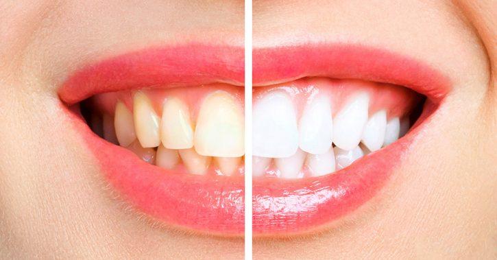Petele întunecate pe dinți: de ce apar și cum să le îndepărtăm